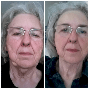 Ultimate Light Face Tightening